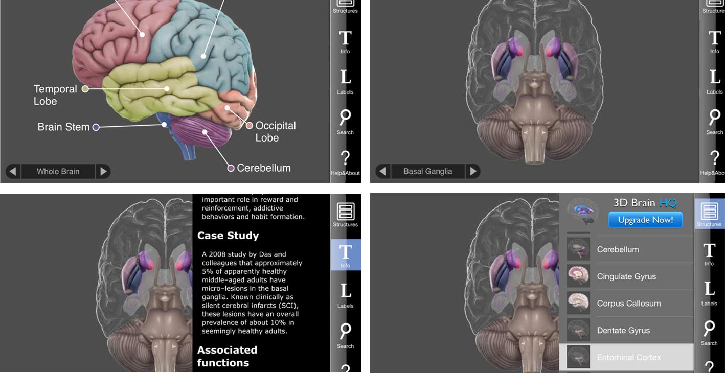 نمای 3D Brain در آیفون